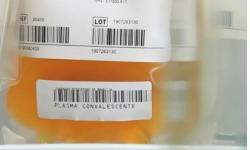 UnB e Universidade de NY se unem em pesquisa com plasma de curados da Covid-19