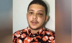 Jovem diz que foi agredido a socos por cantor sertanejo em Goiânia